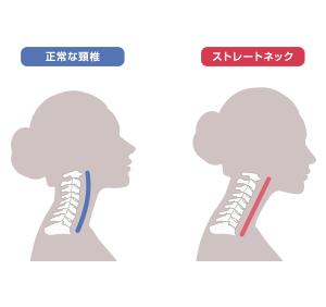 首こり頭痛などの原因は、スマホ首かも?